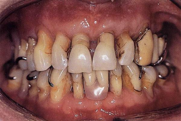 запах изо рта от зубов как избавиться